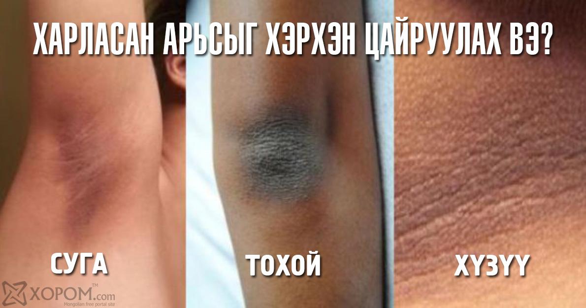 Хүзүү, тохой, өвдөг, суганы харласан арьсыг цайруулах арга 1